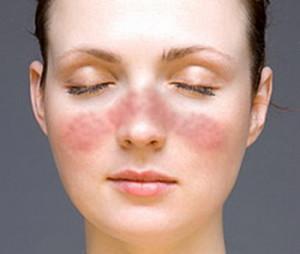 Аллергическая реакция на антибиотики