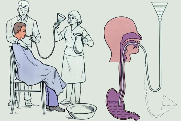 Лечение острого отравления