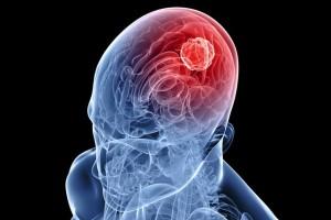 Отек мозга при отравлении стиролом