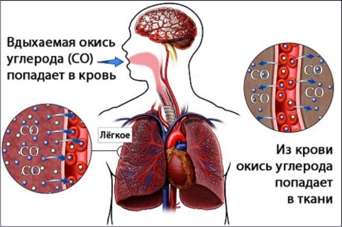 Симптомы отравления окисью углерода