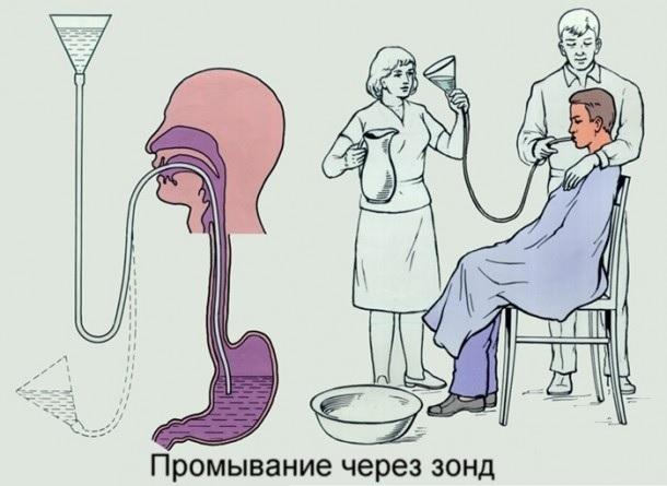 Лечение отравления сосисками