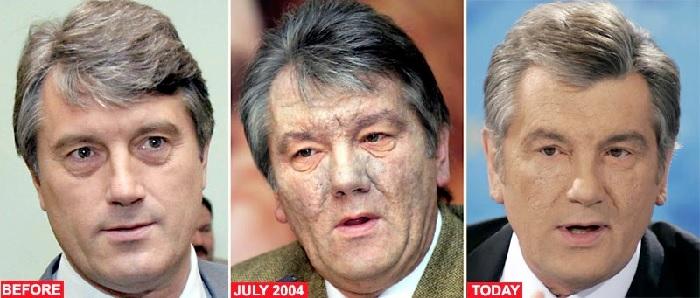 Отравление Ющенко