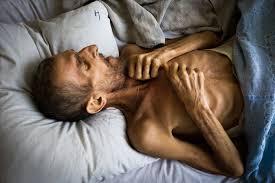 Туберкулезная интоксикация