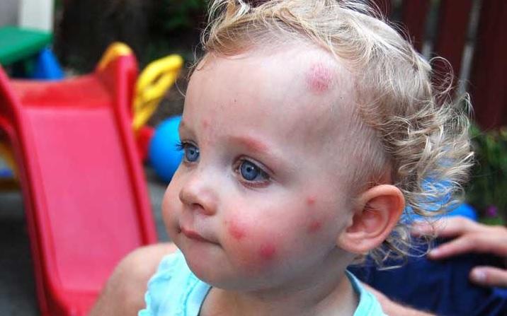 Укусы комаров у детей