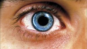 Расширенные зрачки при отравлениии этиленгликолем
