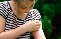 Зуд после укса комаров